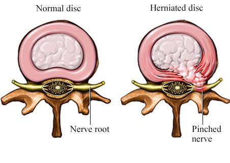 herniated pain