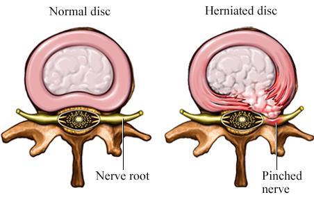 herniated pain