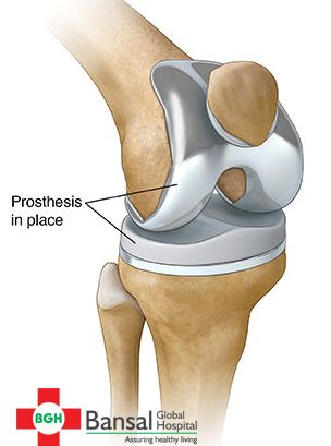 knee-replacement
