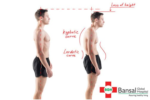 Stooped-posture
