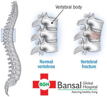 Vertebrae-fracture
