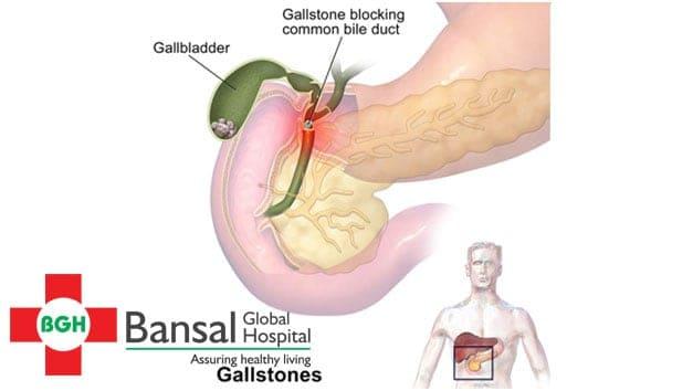 gall-stone
