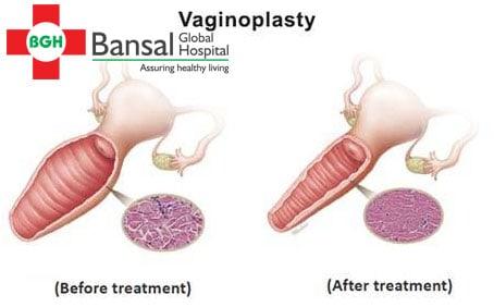 Vaginal prolapsed