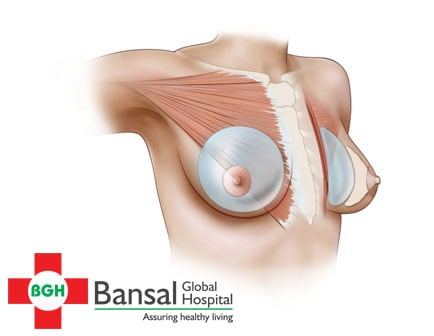 Breast Transplant