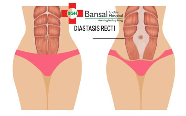 Diastasis recti in pregnant women