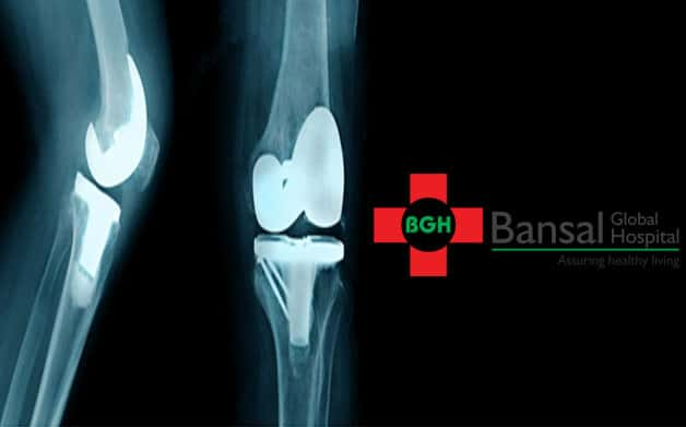 orthopedic doctor in delhi