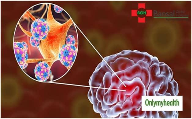 Encephalitis or Chamki Fever