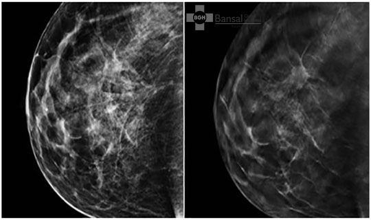Mammography in Breast Cancer Prevention