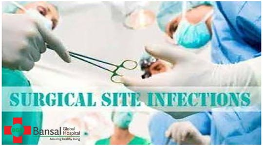 How to Prevent Surgical Site Infections - Bansal Global Hospital