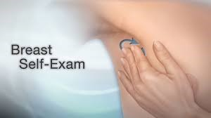 What Is Breast Self-Examination?
