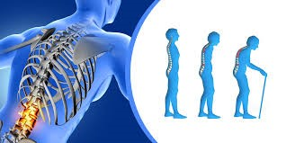 Are You suffering from Osteoporosis