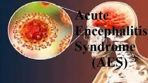 Acute Encephalitis Syndrome symptoms and treatment